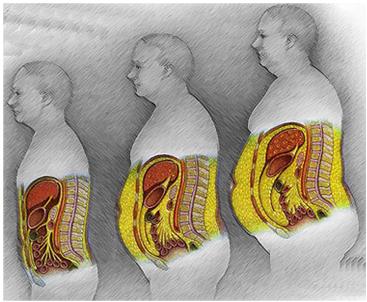 Dr Matt's Wellness University: Hormones and Weight Gain in ...
